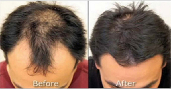 Neograft FUE Hair Transplantation